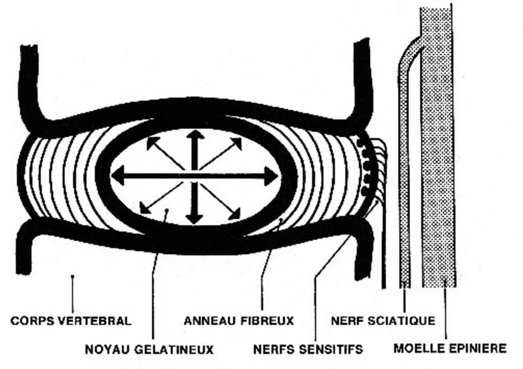 Schéma anatomique du disque intervertébral d'après Kapengy