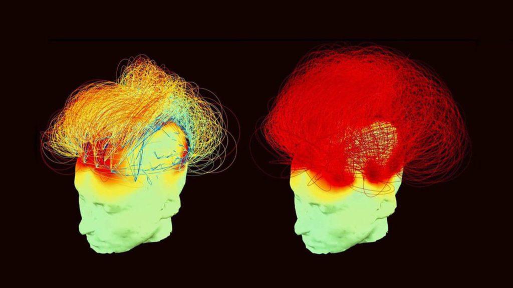 Cette image du cerveau de Matthieu Ricard (à gauche au repos et à droite en pleine méditation) montre l'intensité des connexions cérébrales